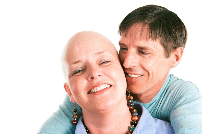 Alopecia totale