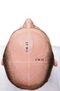 protesi capelli online