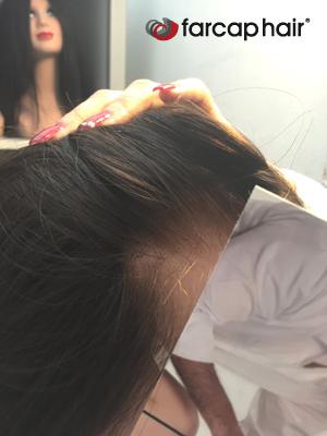 alopecia parrucche farcaphair