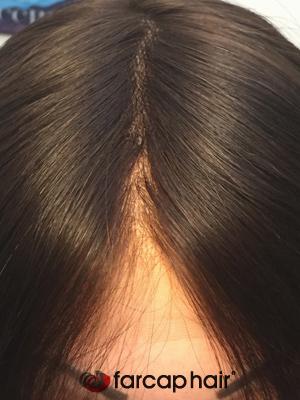 alopecia parrucche