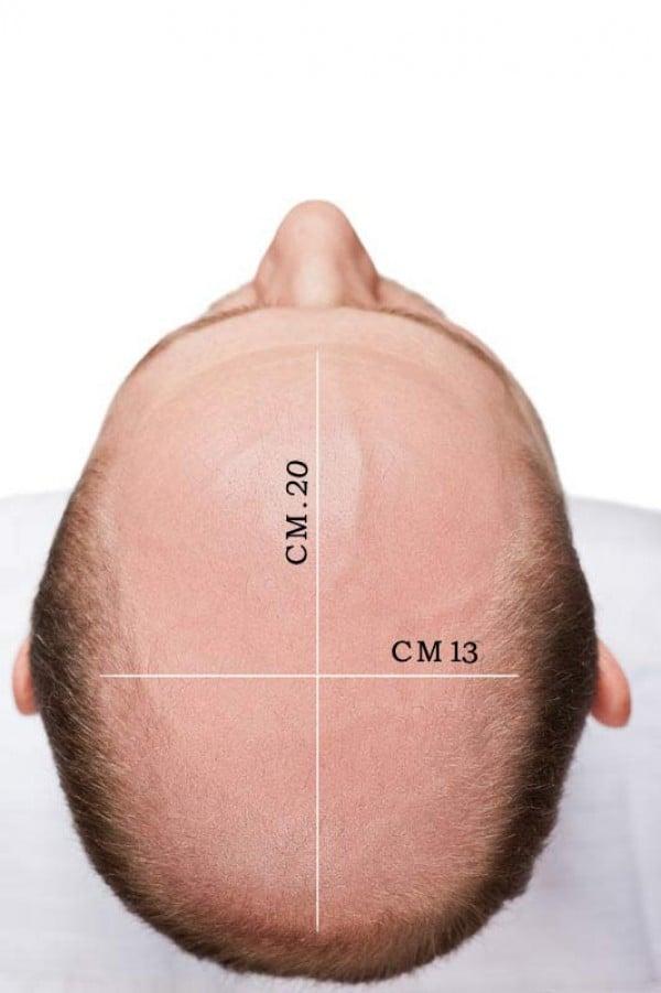 protesi capelli Genova