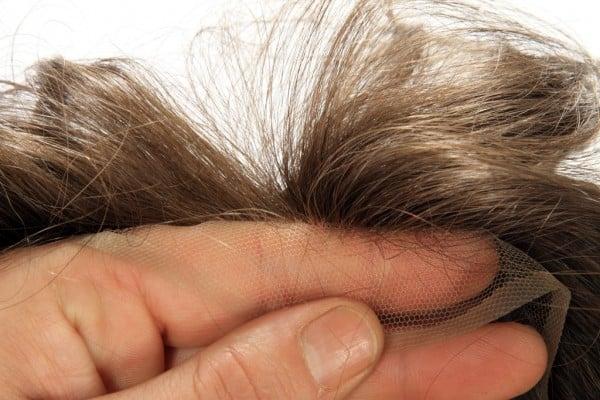 protesi capelli Bologna